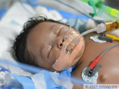 1-Month-Old With Hole In Her Heart Suffers From Severe Pneumonia, She Needs Your Help To Live