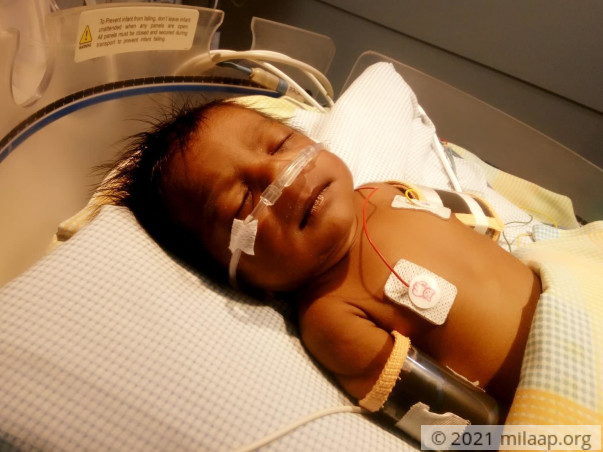 This 1-month-old's Heart Will Stop Beating Without An Urgent Surgery