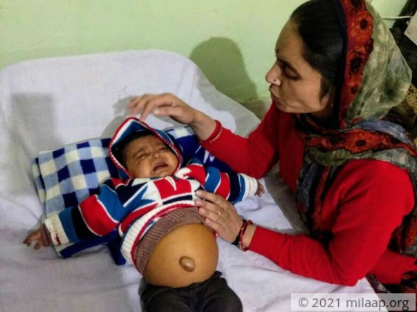 Help This 6-Month-Old Baby Girl Whose Stomach Is Bloating Every Second