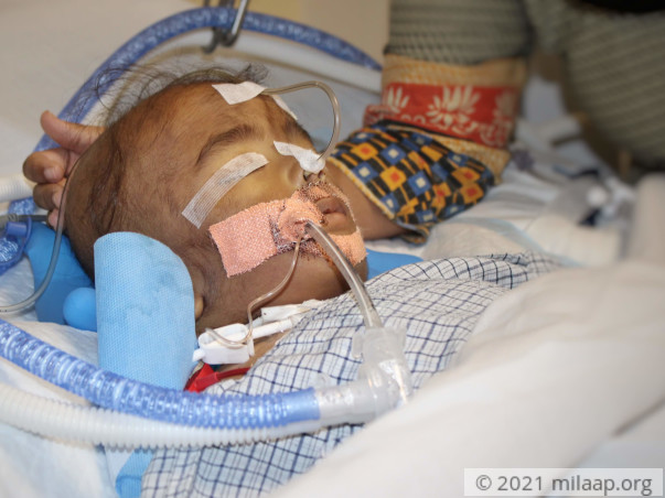 Help 1-Year-Old Arush beat Pneumonia and come out of the ICU alive