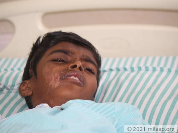 Help this 13-year-old who is critical after an accidental fall
