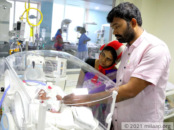 Palm-Sized Twin Babies Weighing Just A Few Grams, Need Urgent Help