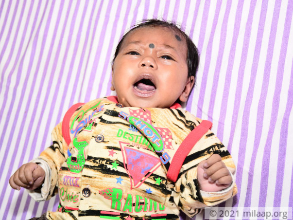 Poor Sweeper Struggles To Save 4-Month-Old From Severe Heart Disease