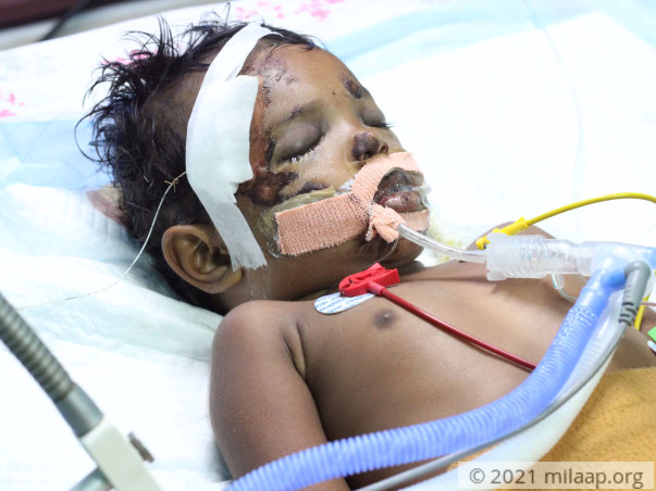 Help 2-Year-Old Who Met With An Accident On Her Way To The Nursery