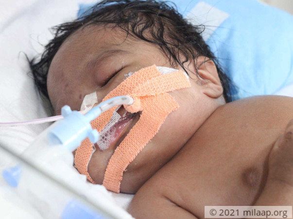 Poor Couple Is In Desperate Need Of Help To Save Their Baby Girl