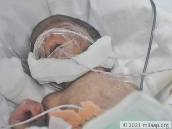 Bangle Seller Needs Your Help To Save His Newborn Baby