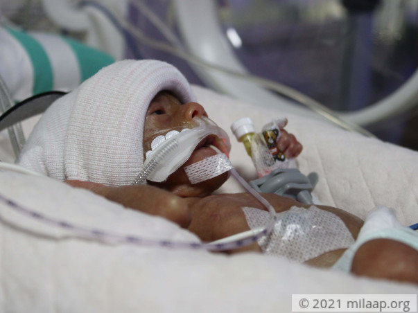 Palm-sized Preemie Fights To Stay Alive While Parents Plead For Help