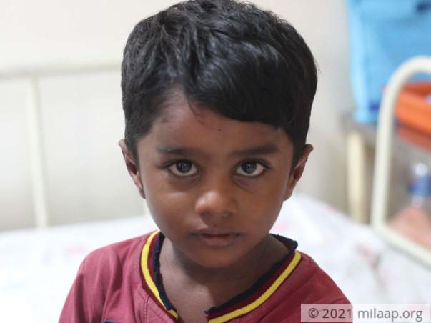 Help Roshith Fight Recurrent Dermal Sinus