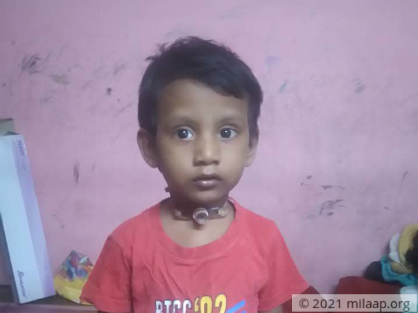 Help Yogesh Recover From Post Intubation Tracheal Stenosis