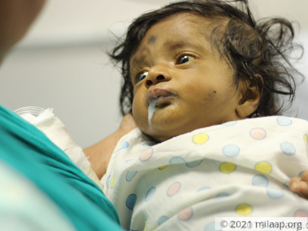 Help Magizhini Fight Biliary Atresia And Undergo A Liver Transplant