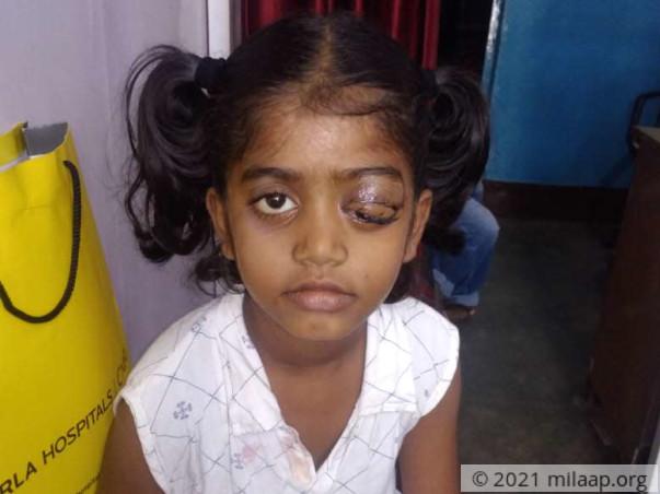 Help D. Lija Fight Orbital Rhabdomyosarcoma