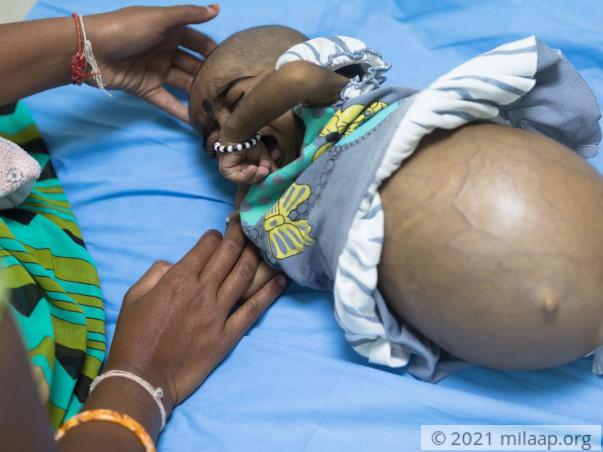 Sahasra has Chronic Liver Disease and needs an urgent Liver Transplant