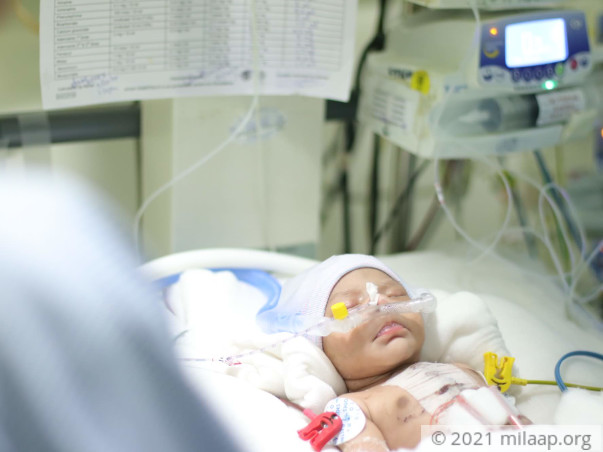 Help Baby of Gayatri Recover