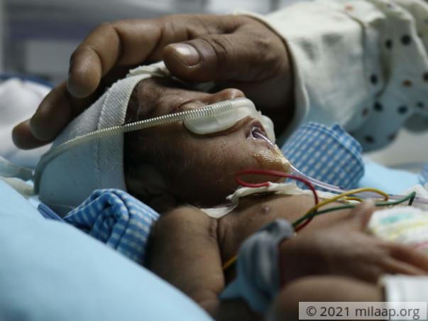 Help Varalaxmi's Twin Babies Recover