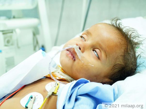 Help Purav recover From Bronchiolitis