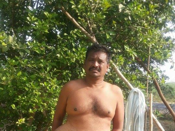 I am fundraising to fundraising for Srinivas large parastomal hernia and critical surgeries