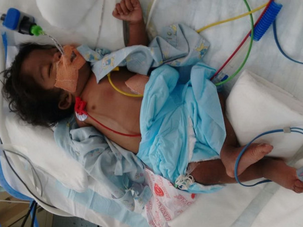 This 5-Month-Old Baby Needs Your Urgent Support To Stay Alive