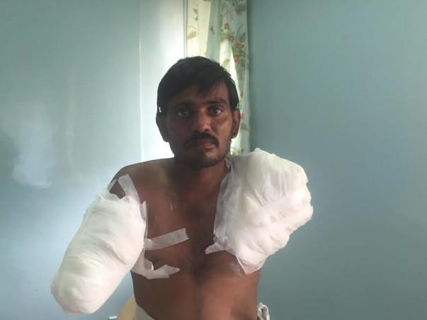 Help Rama Subahiah to undergo treatment for his burnt hands.
