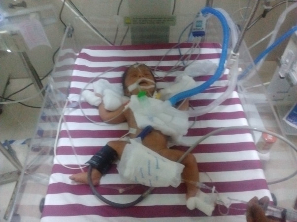 This Couple Needs Your Support To Save Their 3 Day-Old-Baby