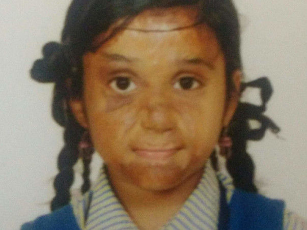 Madhupriya Needs Your Help To Recover From Severe Burns