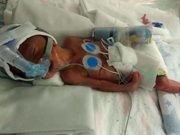 Help!! 25 weeks Premature Baby is in NICU, Family Need Help!!