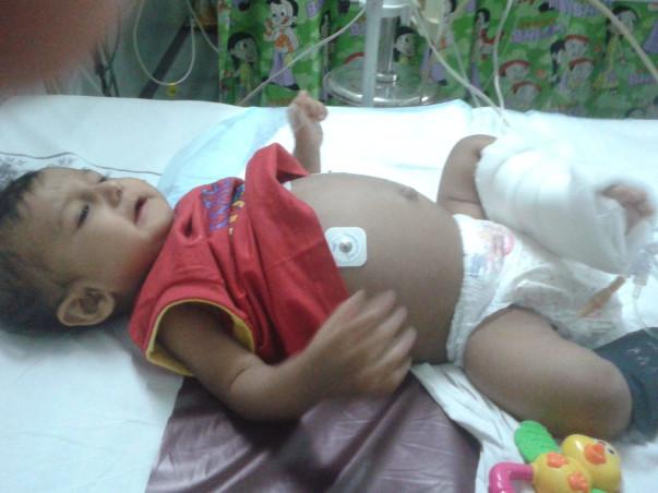 Save Burhanuddin, Liver transplant required