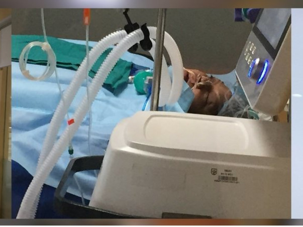 Help my mother to recover from ECMO and Dialysis
