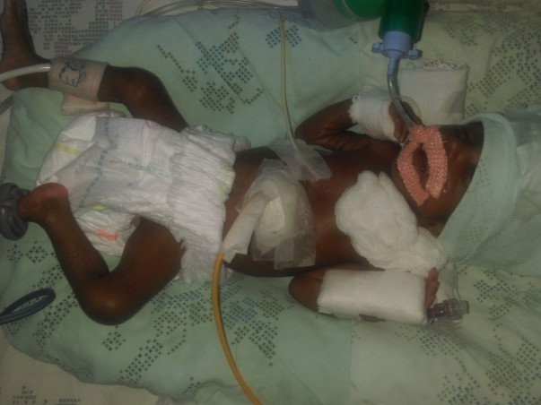 SAVE THIS PREMATURE BABY