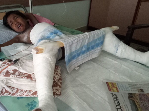 Help For My Daughter's Dislocated Hip Surgery