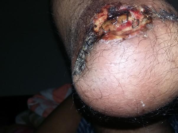 Help Sandeep survive his medical condition