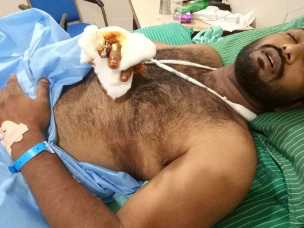 Help Muthu, An Athlete who lost his leg to walk again