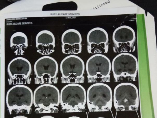 Help Shailesh Undergo An Urgent Brain Surgery