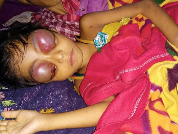 Help Dhanika To Fight Against Leukemia