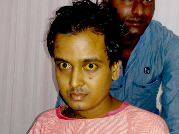 Help 24-Year-Old Uddalok To Fight Back After Liver Transplant Surgery