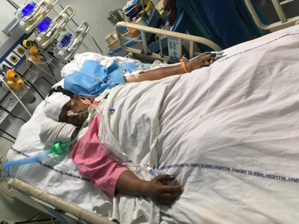 Save A Friend's Mother From Viral Pneumonia Infection (ARDS)
