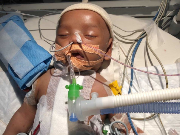 1.5 Month old Mohammed Ahil has to urgently undergo a cardiac surgery