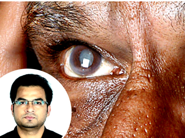 Sponsor A Cataract Surgery