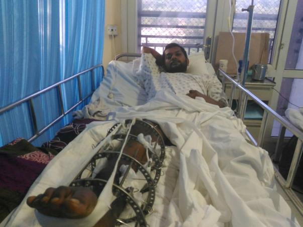 Cancer affected leg broken into pieces.
