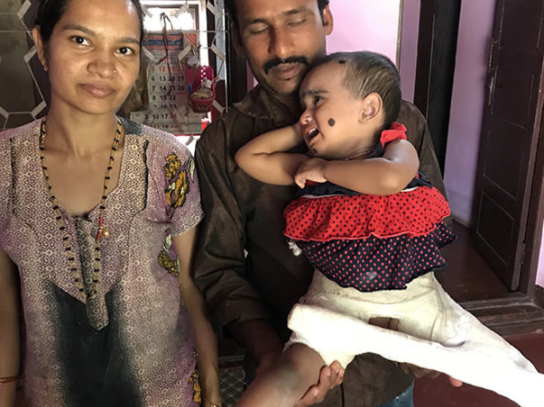 Help A 2 Year Old Suffering From Development Of Dysplasia Hip