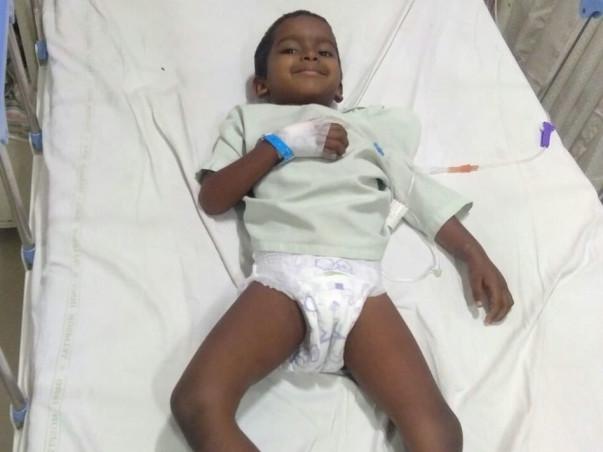 Help 4-Year-Old Venu Undergo Surgical Excision
