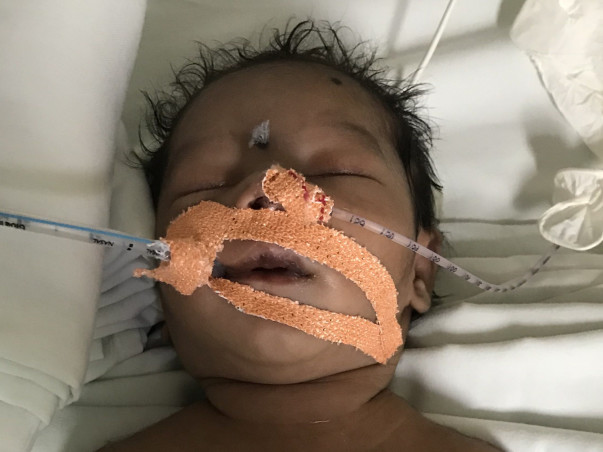 Help Newborn Baby Girl In Her Fight For Survival.