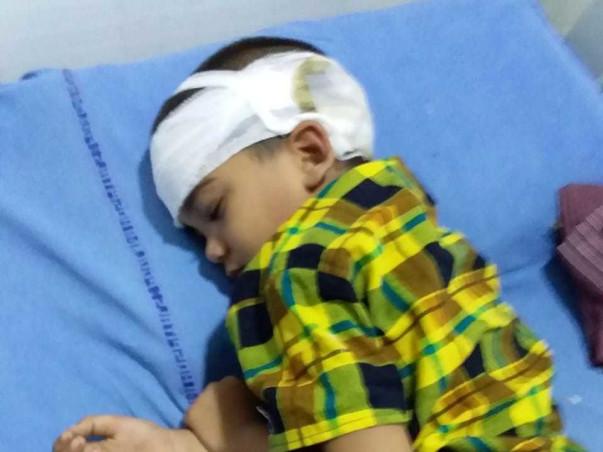 Help mahesh for brain surgery