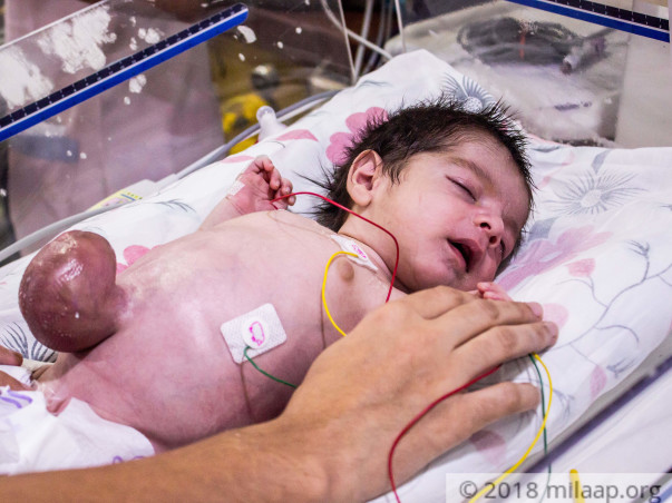 Baby Born With Intestine Outside His Body Has Only Few Hours Left