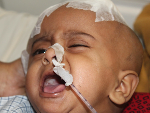 10-Month-Old Needs Treatment To Heal From Brain Injury