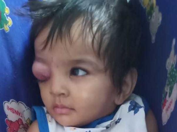 Help Samridhi Fight Against Cancer