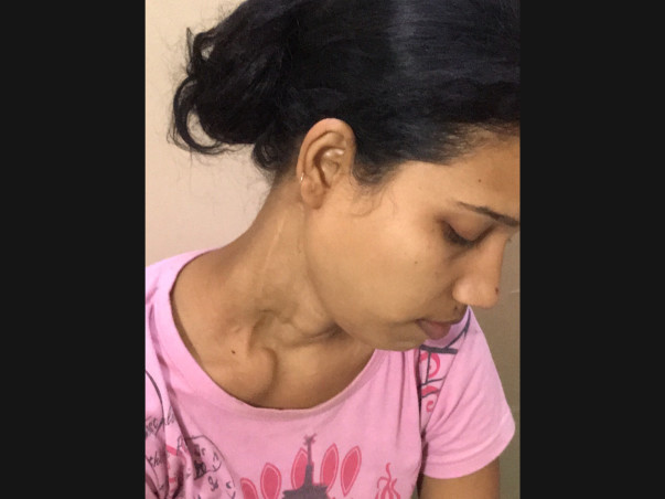 Help Rajni Recover from Carcinoma Thyroid