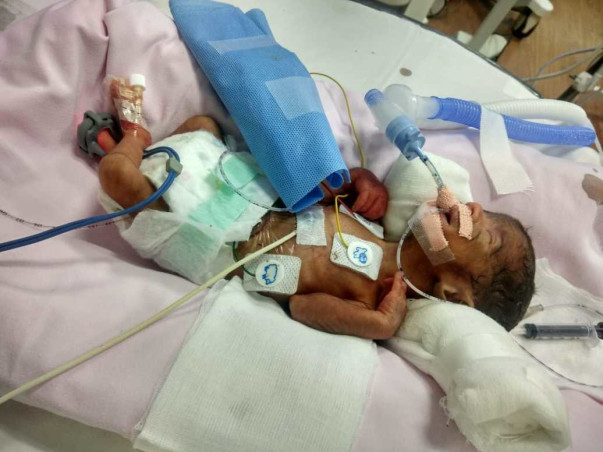 Please Save The Twin Babies