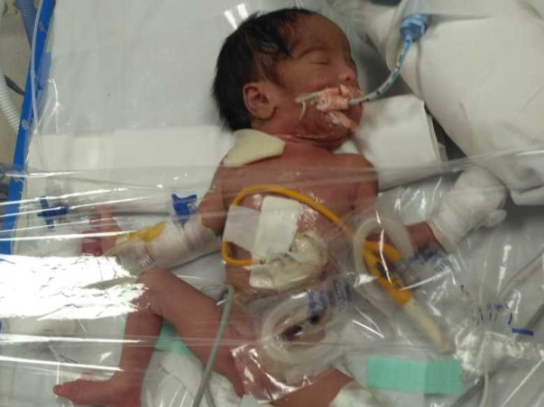 Help Our New Born Baby For Treatment
