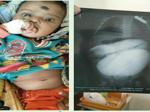 Help Nanyashree Undergo an Intestinal Operation
