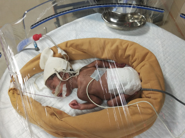 Donate to help My Twins Babies Survive!